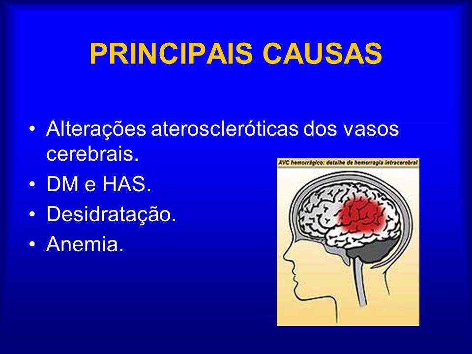 PRINCIPAIS CAUSAS Alterações ateroscleróticas dos vasos cerebrais. DM e HAS. Desidratação. Anemia.
