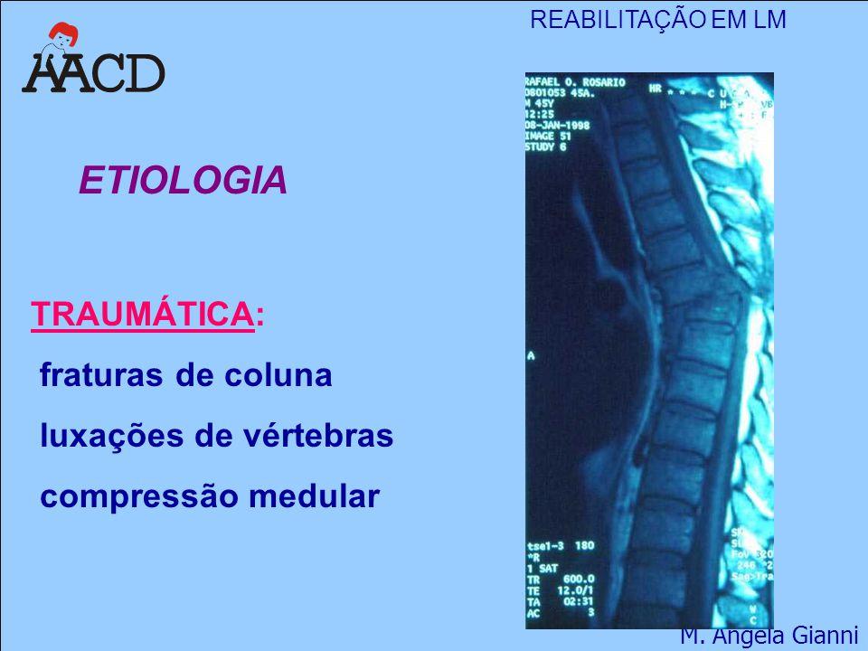 REABILITAÇÃO EM LM M. Angela Gianni ETIOLOGIA TRAUMÁTICA: fraturas de coluna luxações de vértebras compressão medular