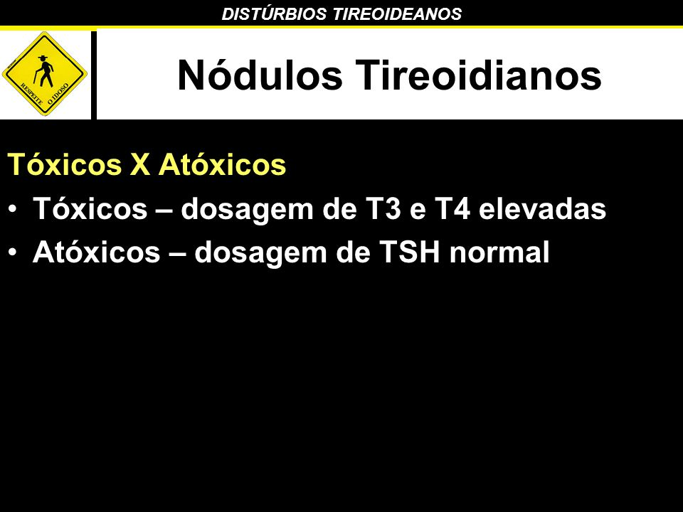 DISTÚRBIOS TIREOIDEANOS Nódulos Tireoidianos Tóxicos X Atóxicos Tóxicos – dosagem de T3 e T4 elevadas Atóxicos – dosagem de TSH normal
