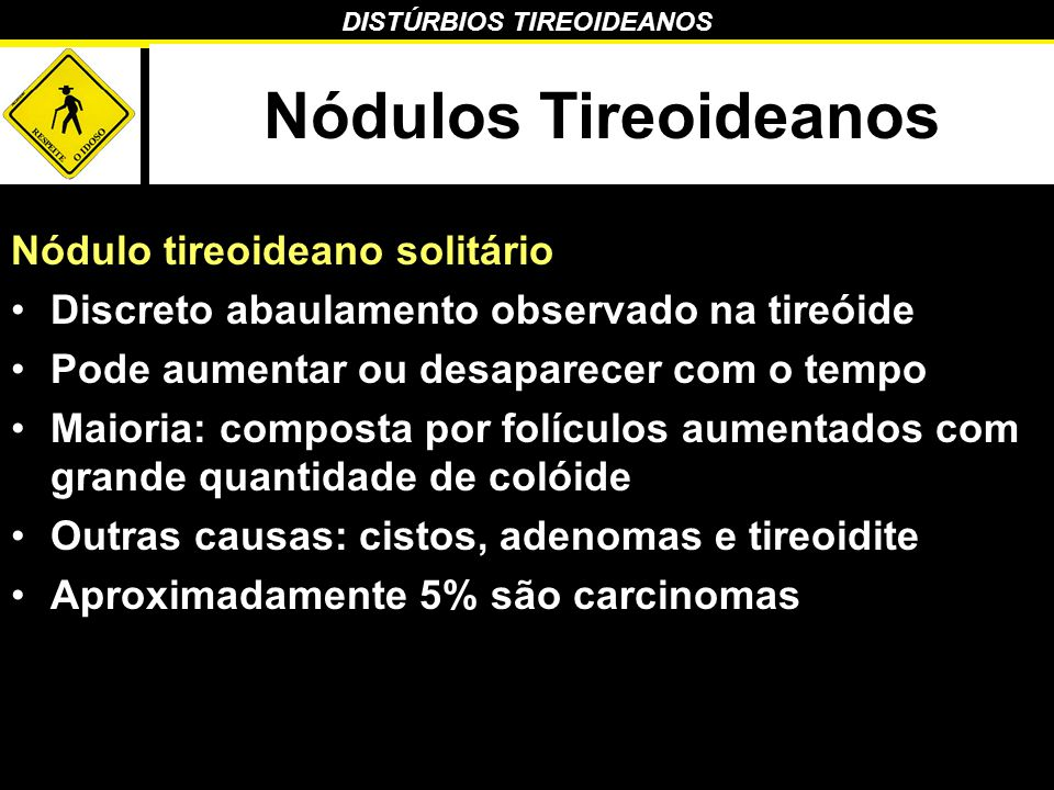 DISTÚRBIOS TIREOIDEANOS Nódulos Tireoideanos Nódulo tireoideano solitário Discreto abaulamento observado na tireóide Pode aumentar ou desaparecer com