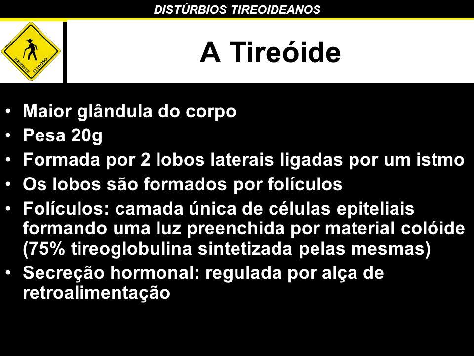DISTÚRBIOS TIREOIDEANOS Hipertiroidismo Diagnóstico –TSH muito baixo em 90% dos casos –T4 livre elevado –T3 total e livre – aumentado em todos os casos de hipertiroidismo