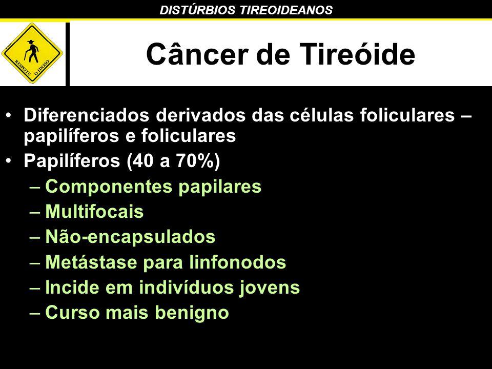DISTÚRBIOS TIREOIDEANOS Câncer de Tireóide Diferenciados derivados das células foliculares – papilíferos e foliculares Papilíferos (40 a 70%) –Compone
