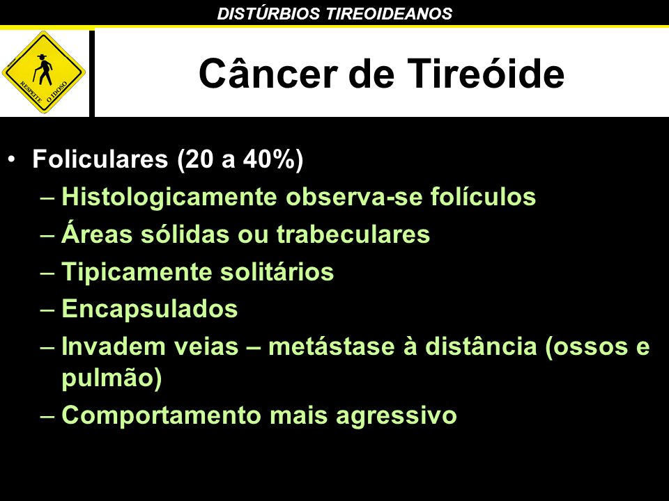DISTÚRBIOS TIREOIDEANOS Câncer de Tireóide Foliculares (20 a 40%) –Histologicamente observa-se folículos –Áreas sólidas ou trabeculares –Tipicamente s