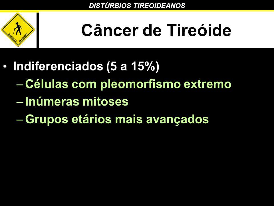 DISTÚRBIOS TIREOIDEANOS Câncer de Tireóide Indiferenciados (5 a 15%) –Células com pleomorfismo extremo –Inúmeras mitoses –Grupos etários mais avançado