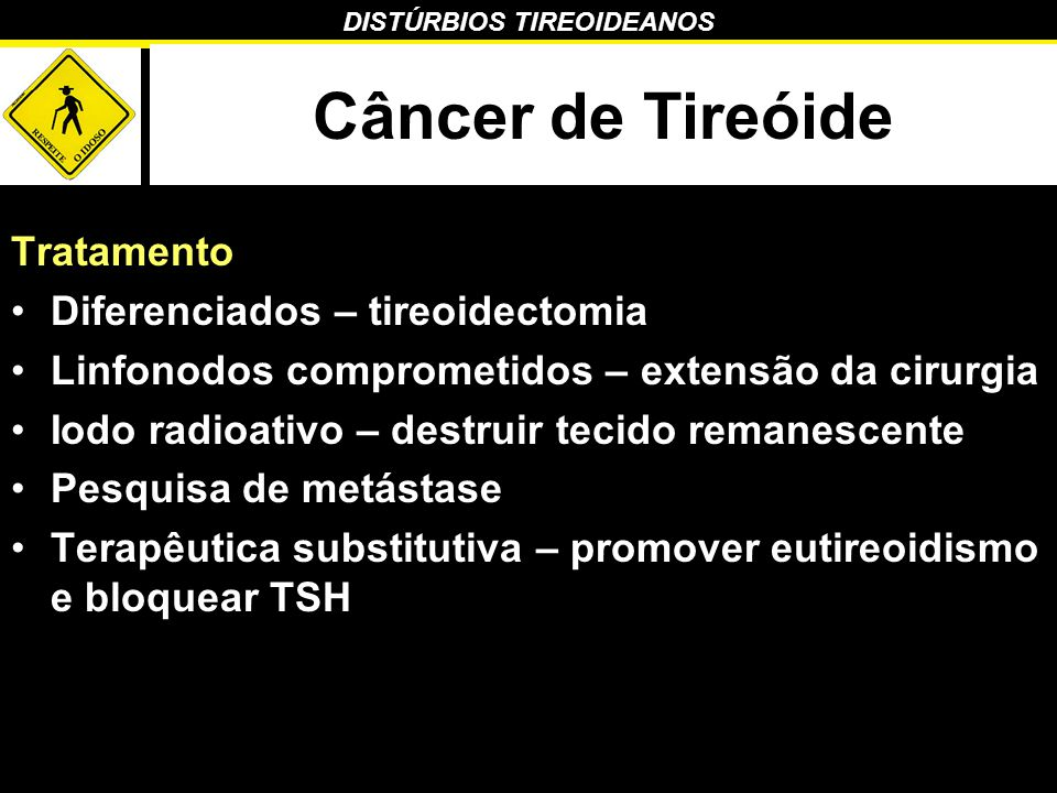 DISTÚRBIOS TIREOIDEANOS Câncer de Tireóide Tratamento Diferenciados – tireoidectomia Linfonodos comprometidos – extensão da cirurgia Iodo radioativo –
