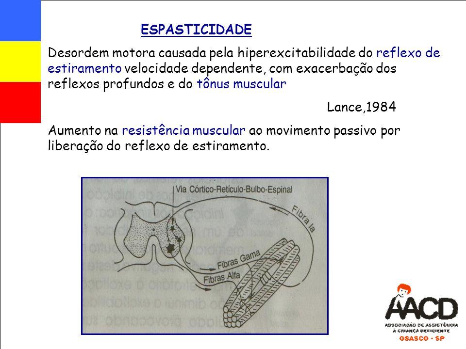 ESPASTICIDADE Desordem motora causada pela hiperexcitabilidade do reflexo de estiramento velocidade dependente, com exacerbação dos reflexos profundos