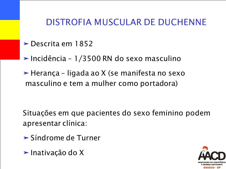 ä Descrita em 1852 ä Incidência – 1/3500 RN do sexo masculino ä Herança – ligada ao X (se manifesta no sexo masculino e tem a mulher como portadora) Situações em que pacientes do sexo feminino podem apresentar clínica: ä Síndrome de Turner ä Inativação do X DISTROFIA MUSCULAR DE DUCHENNE