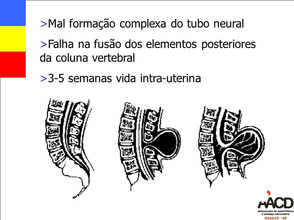 >Mal formação complexa do tubo neural >Falha na fusão dos elementos posteriores da coluna vertebral >3-5 semanas vida intra-uterina
