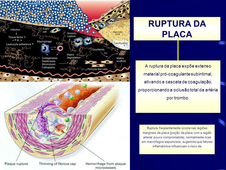 RUPTURA DA PLACA A ruptura da placa expõe extenso material pró-coagulante subintimal, ativando a cascata de coagulação, proporcionando a oclusão total
