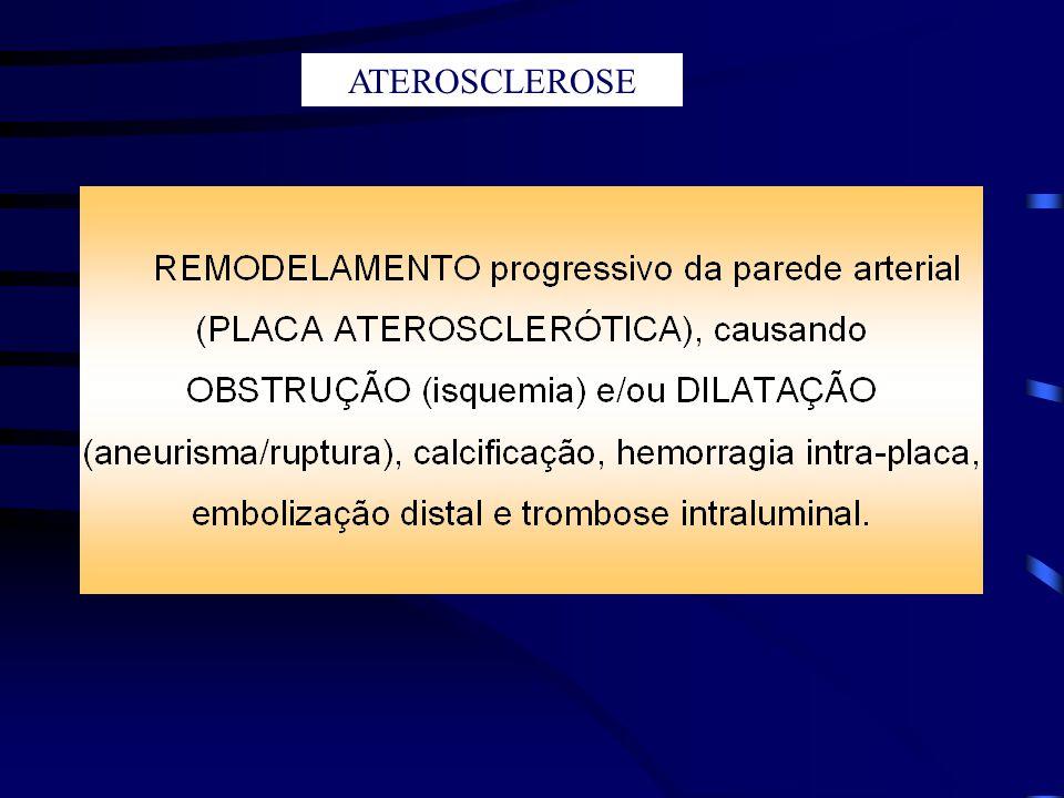 TROMBOSE INTRALUMINAL SÍNDROME CORONARIANA AGUDA: Angina Instável Infarto Agudo do Miocárdio Principal causa de MORTALIDADE INSUFICIÊNCIA VASCULAR CEREBRAL AGUDA: Ataque Isquêmico Transitório Acidente Vascular Cerebral Principal causa de INCAPACIDADE RUPTURA DA PLACA ATEROSCLERÓTICA ISQUEMIA PROLONGADA INFARTO