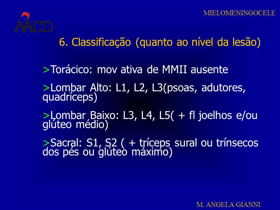M. ANGELA GIANNI MIELOMENINGOCELE 6. Classificação (quanto ao nível da lesão) >Torácico: mov ativa de MMII ausente >Lombar Alto: L1, L2, L3(psoas, adu