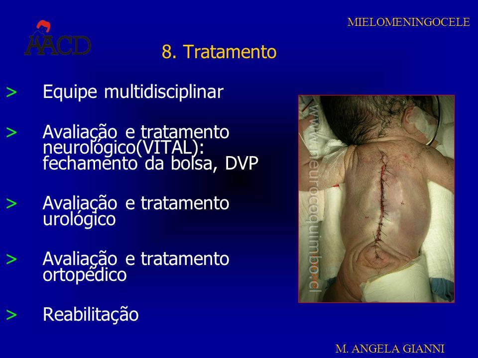 M. ANGELA GIANNI MIELOMENINGOCELE 8. Tratamento >Equipe multidisciplinar >Avaliação e tratamento neurológico(VITAL): fechamento da bolsa, DVP >Avaliaç