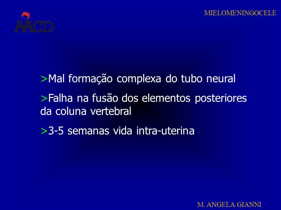 M. ANGELA GIANNI MIELOMENINGOCELE >Mal formação complexa do tubo neural >Falha na fusão dos elementos posteriores da coluna vertebral >3-5 semanas vid