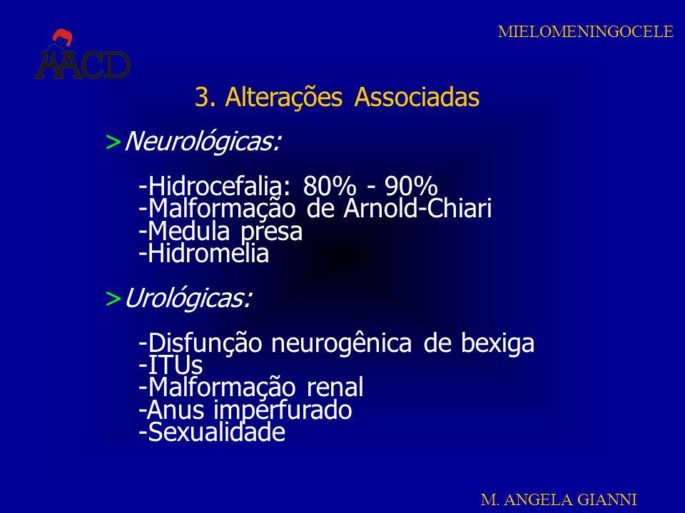 M. ANGELA GIANNI MIELOMENINGOCELE 3. Alterações Associadas >Neurológicas: -Hidrocefalia: 80% - 90% -Malformação de Arnold-Chiari -Medula presa -Hidrom