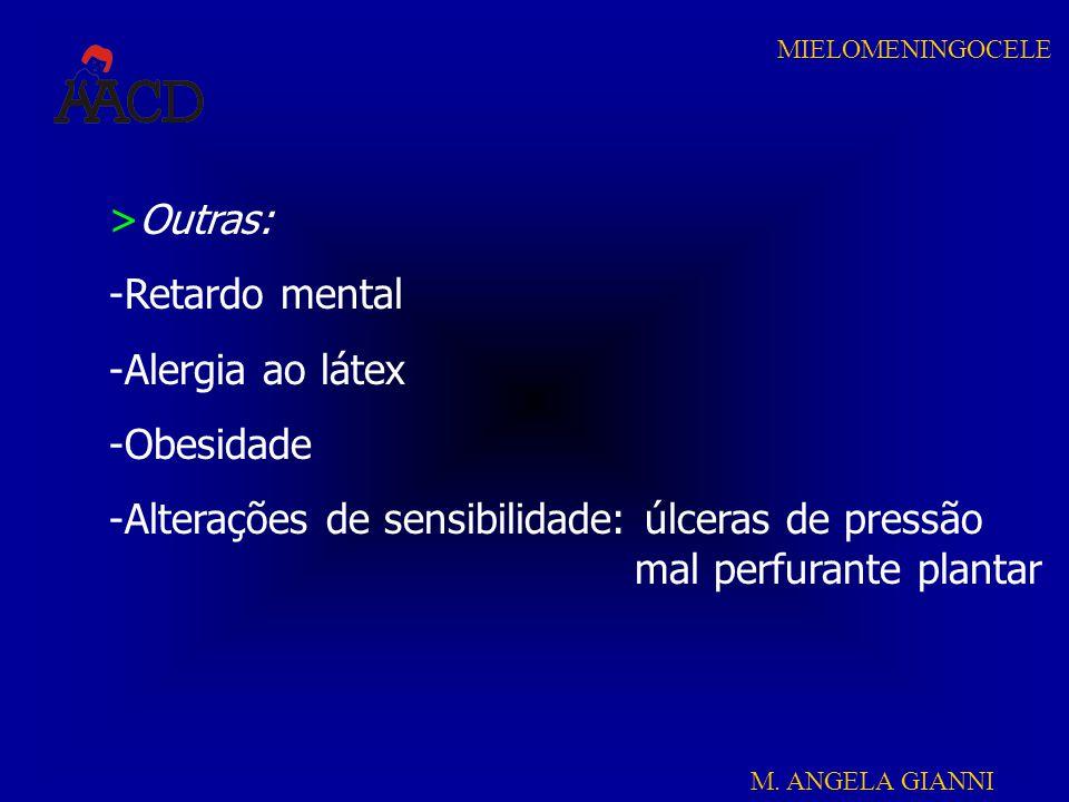 M. ANGELA GIANNI MIELOMENINGOCELE >Outras: -Retardo mental -Alergia ao látex -Obesidade -Alterações de sensibilidade: úlceras de pressão mal perfurant