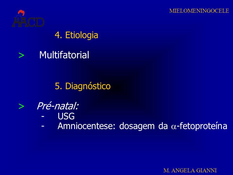 M. ANGELA GIANNI MIELOMENINGOCELE 4. Etiologia > Multifatorial 5. Diagnóstico >Pré-natal: -USG -Amniocentese: dosagem da  -fetoproteína