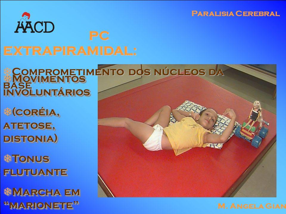 "M. Angela Gianni Paralisia Cerebral  Movimentos involuntários  (coréia, atetose, distonia)  Tonus flutuante  Marcha em ""marionete""  Movimentos in"