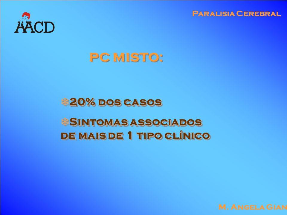 M. Angela Gianni Paralisia Cerebral PC MISTO:  20% dos casos  Sintomas associados de mais de 1 tipo clínico  20% dos casos  Sintomas associados de