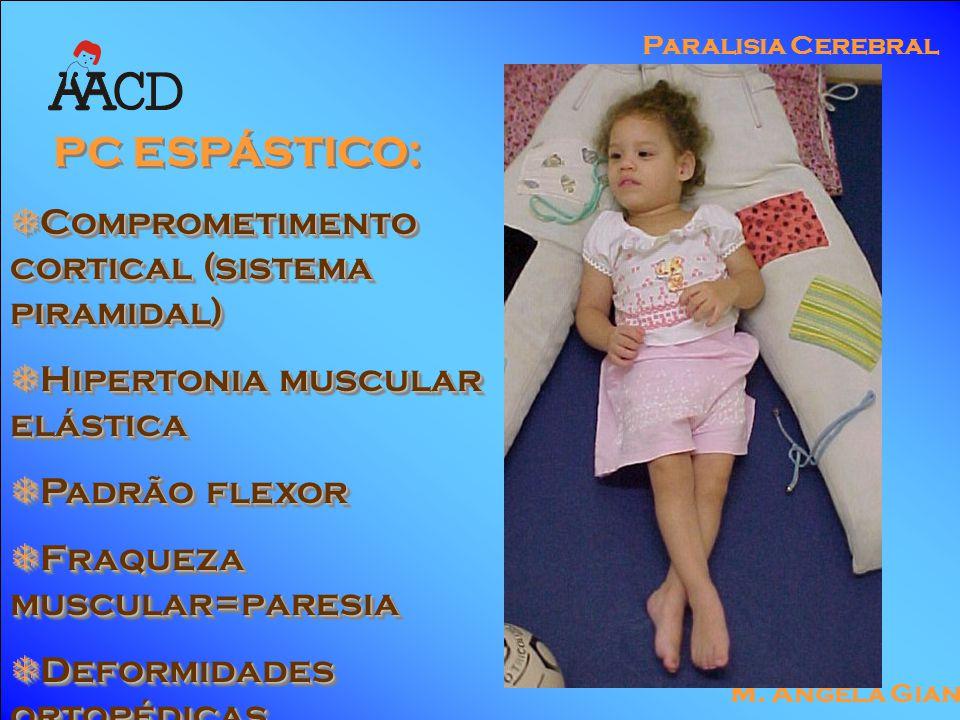 M. Angela Gianni Paralisia Cerebral PC ESPÁSTICO:  Comprometimento cortical (sistema piramidal)  Hipertonia muscular elástica  Padrão flexor  Fraq