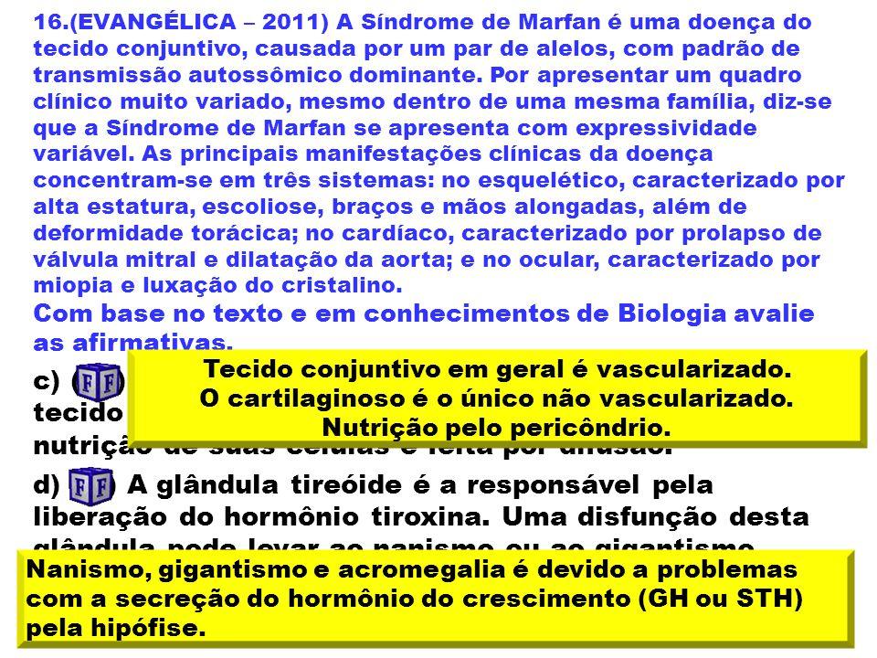 16.(EVANGÉLICA – 2011) A Síndrome de Marfan é uma doença do tecido conjuntivo, causada por um par de alelos, com padrão de transmissão autossômico dom