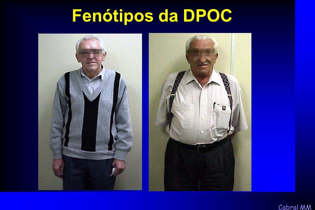 Cabral MM Fenótipos da DPOC