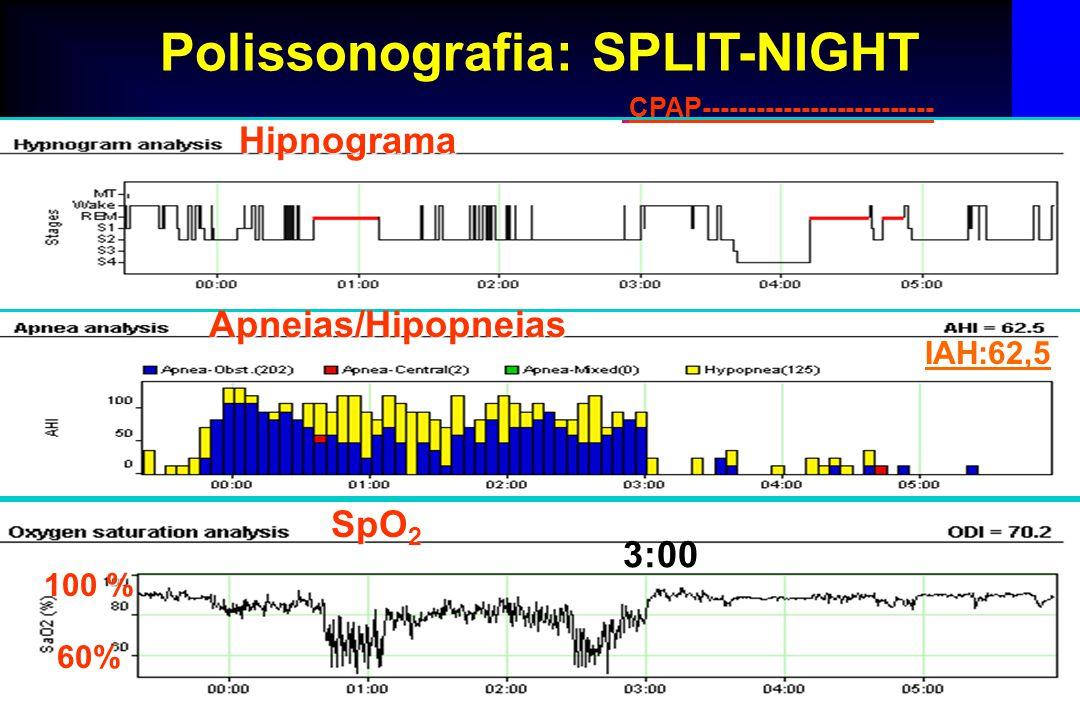 Cabral MM Polissonografia: SPLIT-NIGHT CPAP-------------------------- 100 % 60% SpO 2 Hipnograma Apneias/Hipopneias IAH:62,5 3:00