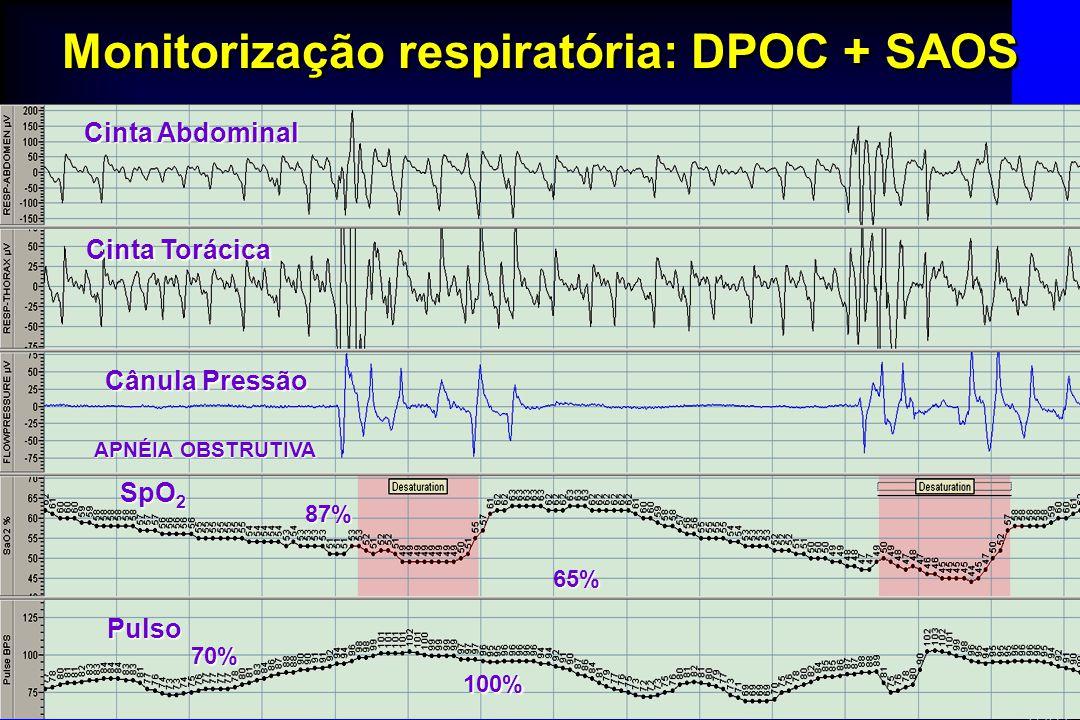 Cabral MM Monitorização respiratória: DPOC + SAOS Cinta Abdominal Cinta Torácica Cânula Pressão SpO 2 Pulso APNÉIA OBSTRUTIVA 87% 65% 70% 100%