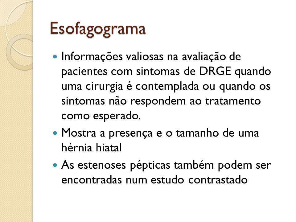 Esofagograma Informações valiosas na avaliação de pacientes com sintomas de DRGE quando uma cirurgia é contemplada ou quando os sintomas não respondem