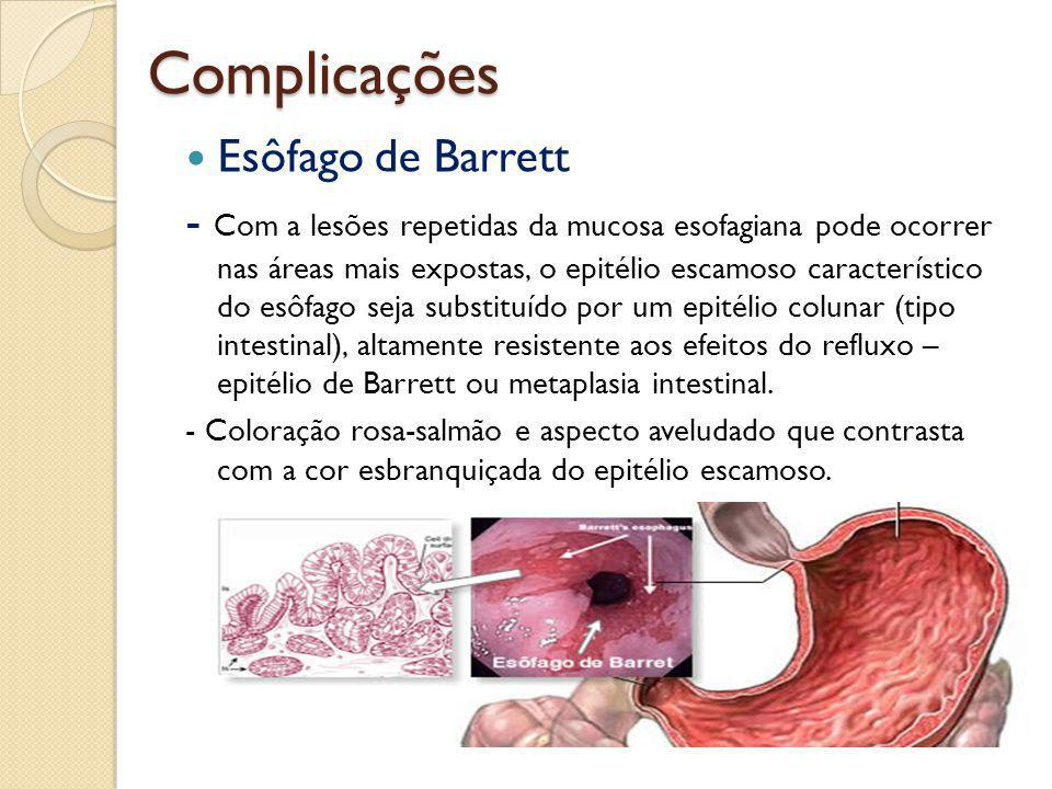 Complicações Esôfago de Barrett - Com a lesões repetidas da mucosa esofagiana pode ocorrer nas áreas mais expostas, o epitélio escamoso característico