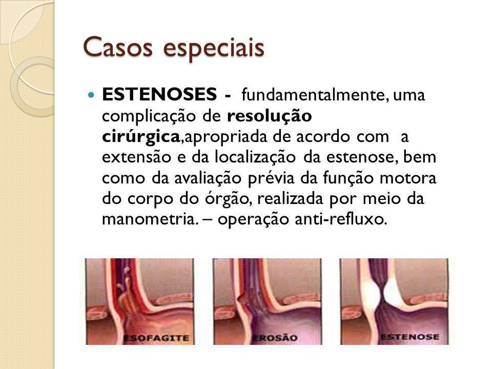 Casos especiais ESTENOSES - fundamentalmente, uma complicação de resolução cirúrgica,apropriada de acordo com a extensão e da localização da estenose,