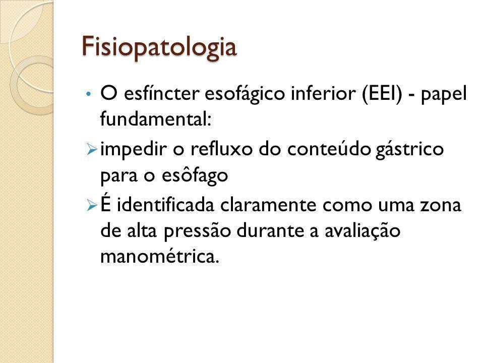 Fisiopatologia O esfíncter esofágico inferior (EEI) - papel fundamental:  impedir o refluxo do conteúdo gástrico para o esôfago  É identificada clar