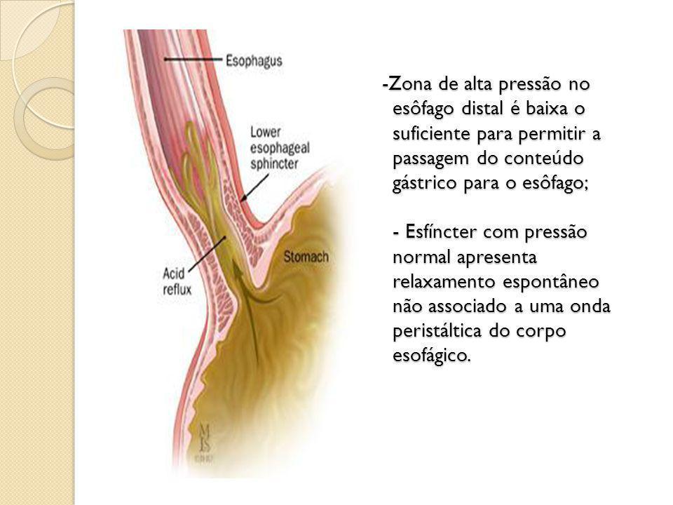 -Zona de alta pressão no esôfago distal é baixa o suficiente para permitir a passagem do conteúdo gástrico para o esôfago; - Esfíncter com pressão nor