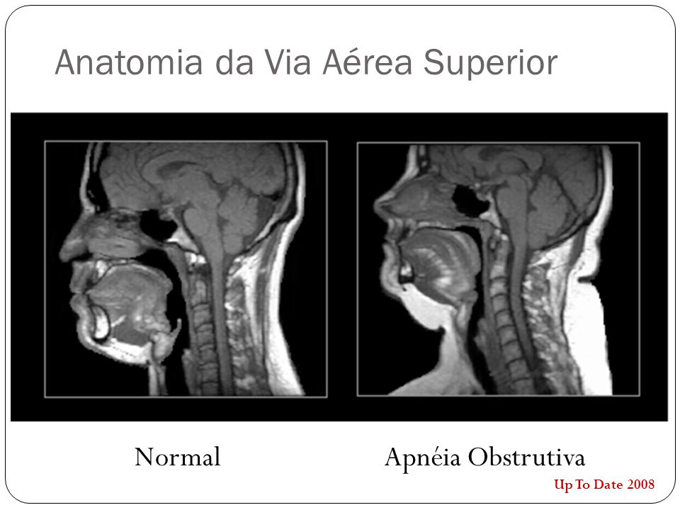 Anatomia da Via Aérea Superior NormalApnéia Obstrutiva Up To Date 2008