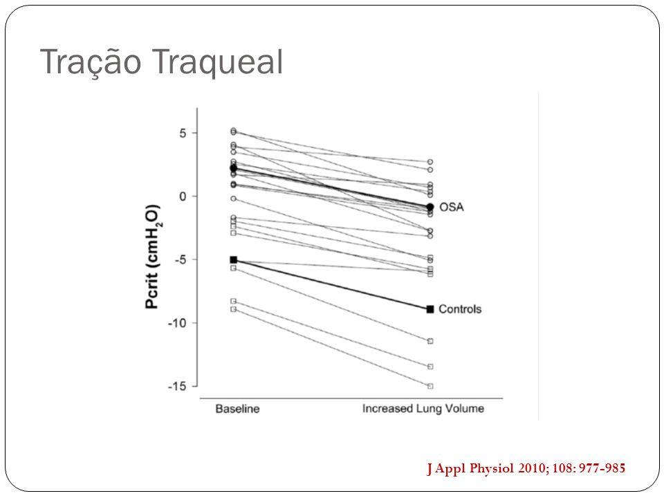 J Appl Physiol 2010; 108: 977-985 Tração Traqueal