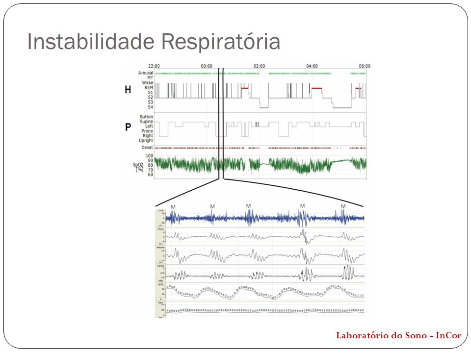 Instabilidade Respiratória Laboratório do Sono - InCor