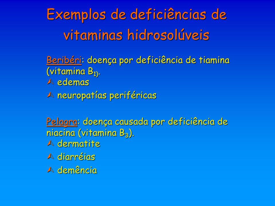 Exemplos de deficiências de vitaminas hidrosolúveis Beribéri: doença por deficiência de tiamina (vitamina B 1).  edemas  neuropatías periféricas Pel