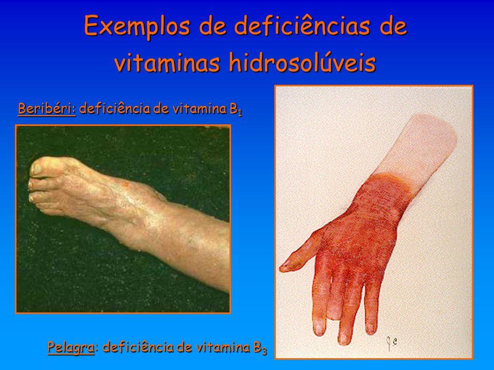 Exemplos de deficiências de vitaminas hidrosolúveis Beribéri: deficiência de vitamina B 1 Pelagra: deficiência de vitamina B 3