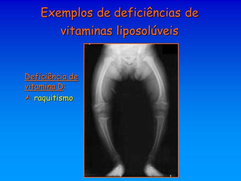 Exemplos de deficiências de vitaminas liposolúveis Deficiência de vitamina D:  raquitismo