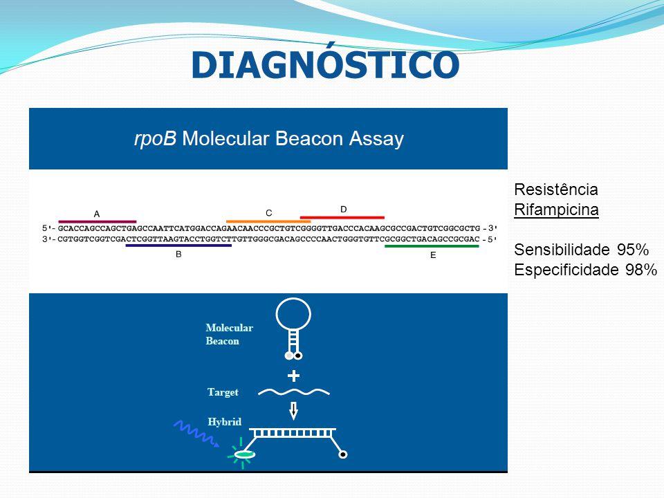 DIAGNÓSTICO Resistência Rifampicina Sensibilidade 95% Especificidade 98%