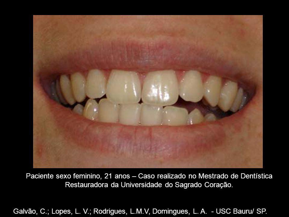 Galvão, C.; Lopes, L. V.; Rodrigues, L.M.V, Domingues, L. A. - USC Bauru/ SP. Paciente sexo feminino, 21 anos – Caso realizado no Mestrado de Dentísti