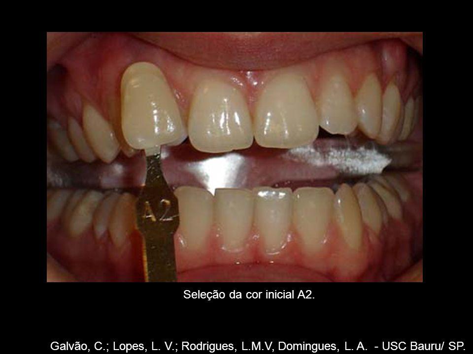 Seleção da cor inicial A2. Galvão, C.; Lopes, L. V.; Rodrigues, L.M.V, Domingues, L. A. - USC Bauru/ SP.