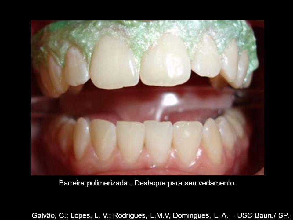 Galvão, C.; Lopes, L. V.; Rodrigues, L.M.V, Domingues, L. A. - USC Bauru/ SP. Barreira polimerizada. Destaque para seu vedamento.