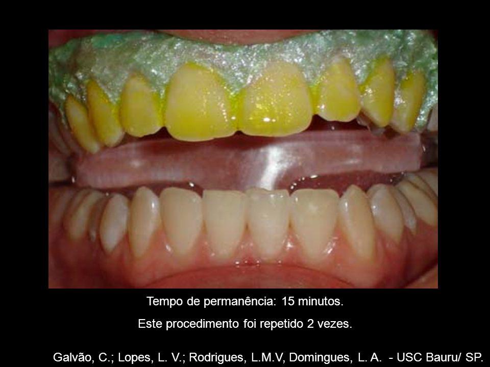 Galvão, C.; Lopes, L. V.; Rodrigues, L.M.V, Domingues, L. A. - USC Bauru/ SP. Tempo de permanência: 15 minutos. Este procedimento foi repetido 2 vezes