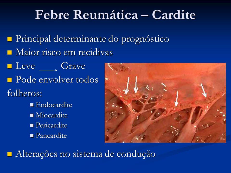 Febre Reumática – Cardite Principal determinante do prognóstico Principal determinante do prognóstico Maior risco em recidivas Maior risco em recidiva