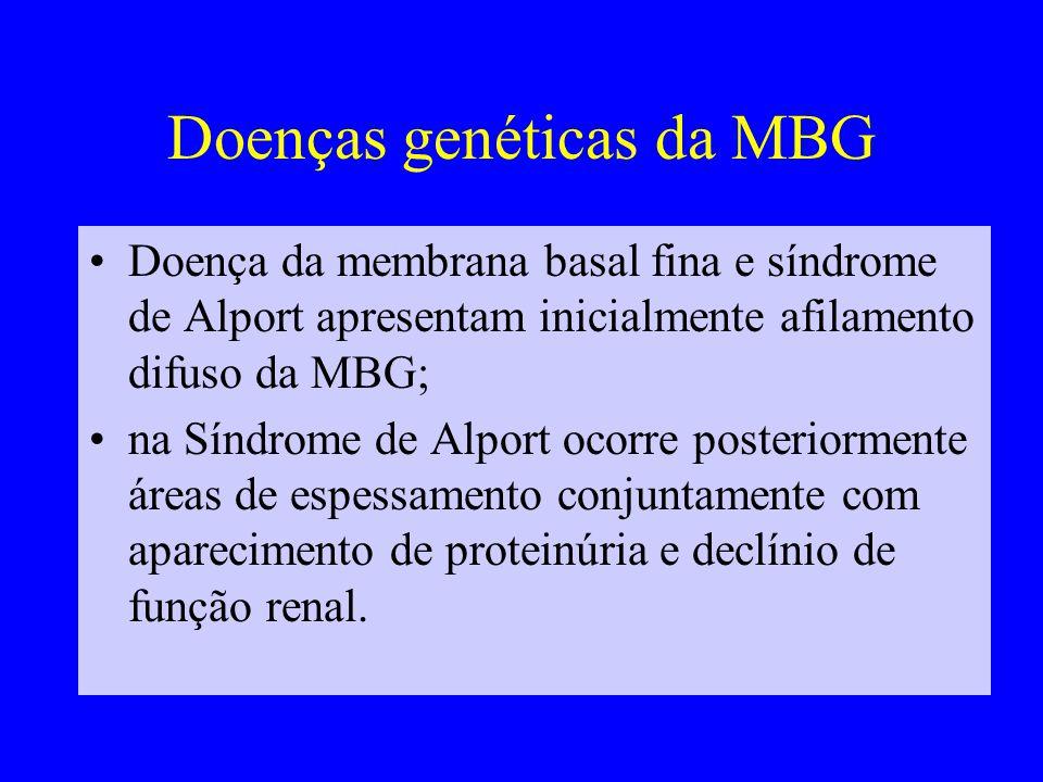Doenças genéticas da MBG Doença da membrana basal fina e síndrome de Alport apresentam inicialmente afilamento difuso da MBG; na Síndrome de Alport ocorre posteriormente áreas de espessamento conjuntamente com aparecimento de proteinúria e declínio de função renal.