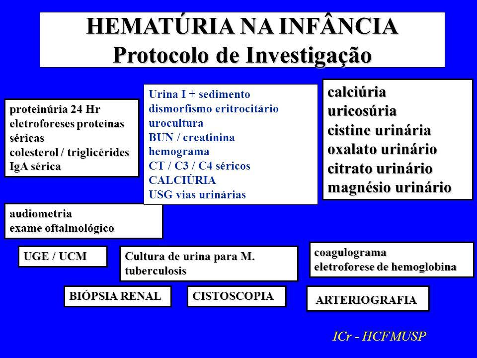 HEMATÚRIA NA INFÂNCIA Protocolo de Investigação audiometria exame oftalmológico Urina I + sedimento dismorfismo eritrocitário urocultura BUN / creatinina hemograma CT / C3 / C4 séricos CALCIÚRIA USG vias urinárias proteinúria 24 Hr eletroforeses proteínas séricas colesterol / triglicérides IgA sérica calciúriauricosúria cistine urinária oxalato urinário citrato urinário magnésio urinário Cultura de urina para M.