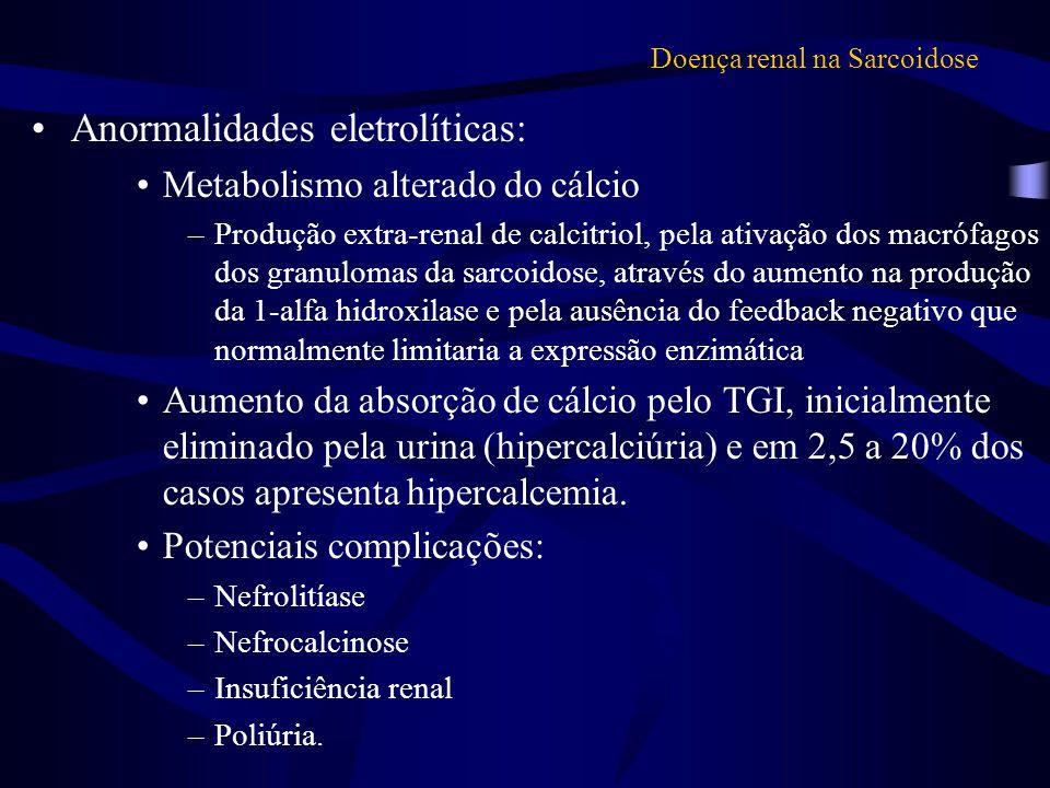 Doença renal na Sarcoidose Anormalidades eletrolíticas: Metabolismo alterado do cálcio –Produção extra-renal de calcitriol, pela ativação dos macrófag