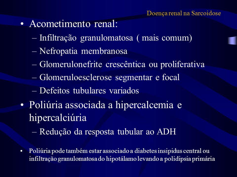 Doença renal na Sarcoidose Acometimento renal: –Infiltração granulomatosa ( mais comum) –Nefropatia membranosa –Glomerulonefrite crescêntica ou prolif