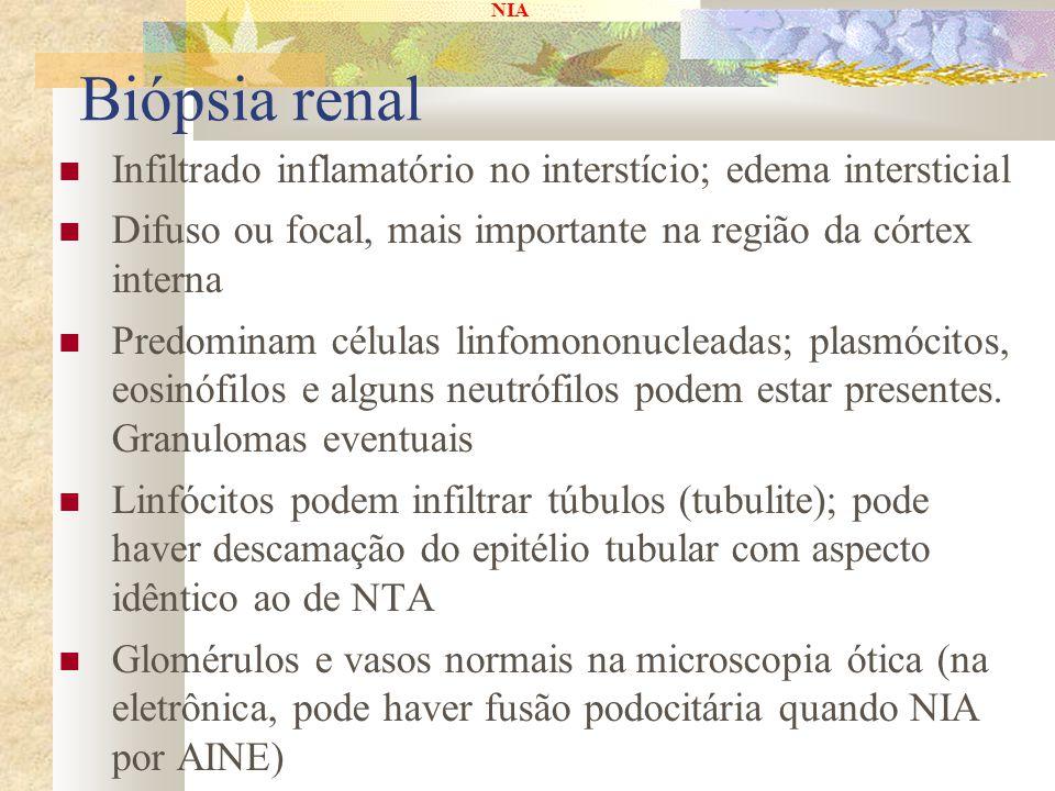 NIA Biópsia renal Infiltrado inflamatório no interstício; edema intersticial Difuso ou focal, mais importante na região da córtex interna Predominam c