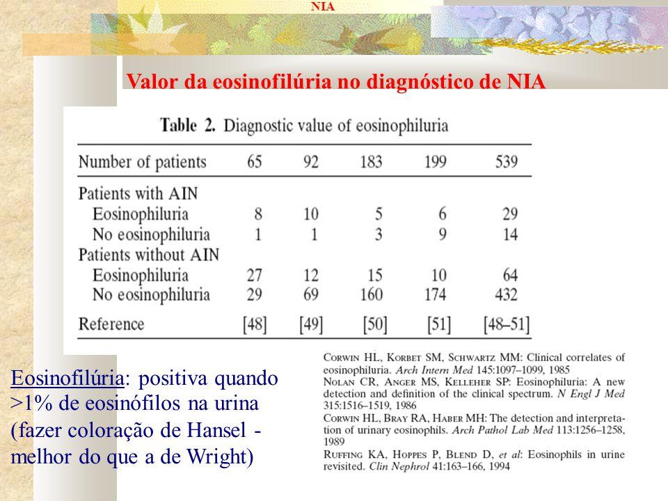 NIA Valor da eosinofilúria no diagnóstico de NIA Eosinofilúria: positiva quando >1% de eosinófilos na urina (fazer coloração de Hansel - melhor do que